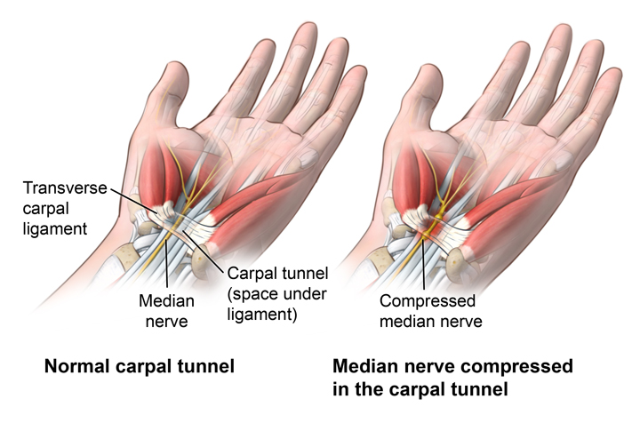Can Chiropractors Help With Your Carpal Tunnel Syndrome