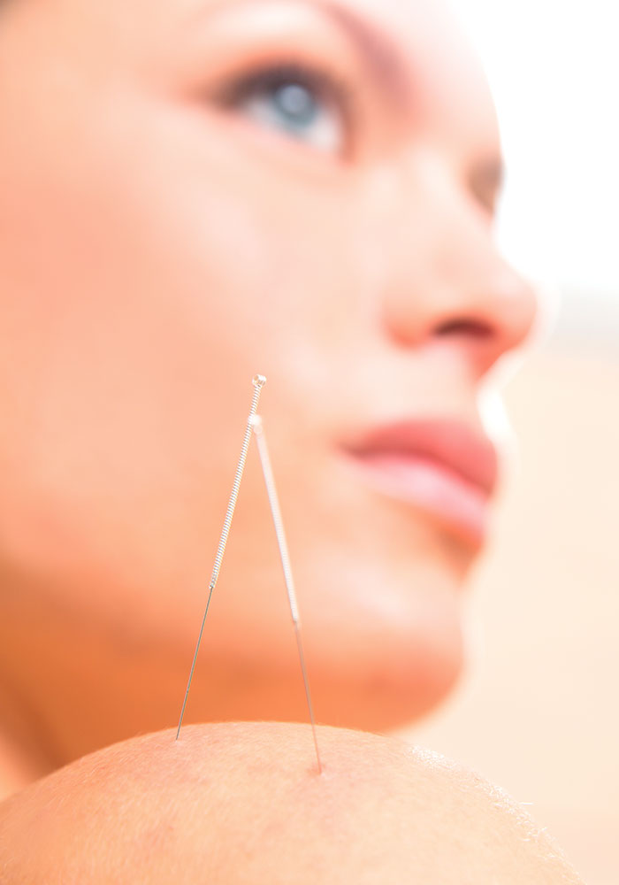 Acupuncture Therapy in Whitby